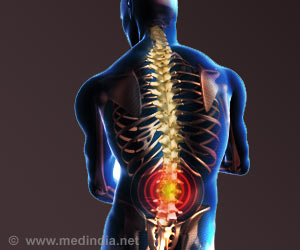 epidural-steroid-injections